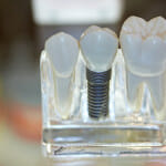 Dental Implants Clear