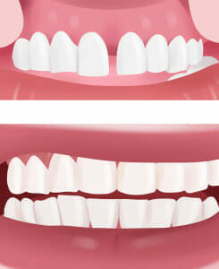 best Dental Bonding Manhattan Beach